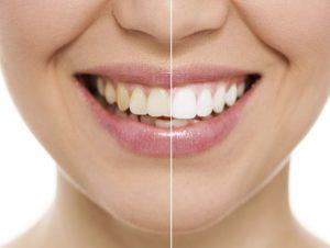 ۱۱ روش سفید کردن دندان در خانه