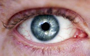 پرش پلک؛ علت ها، درمان ها و هر آنچه درباره آن باید بدانید