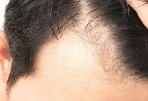 ریزش موی سکه ای: علائم، درمان و علل