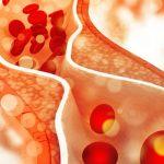 کلسترول بالا: علائم، دلایل و خطرات