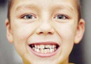 علت سیاه شدن دندان ها و راه های درمان