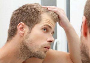 ۲۰ علت ریزش مو در مردان و زنان