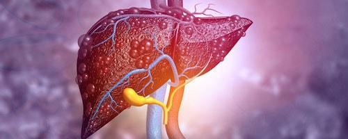 خواص شگفت انگیز قارچ گانودرما و هر آنچه باید بدانید