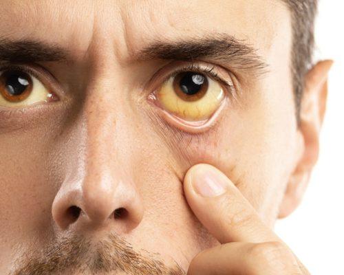 علائم و نشانه های کبد چرب