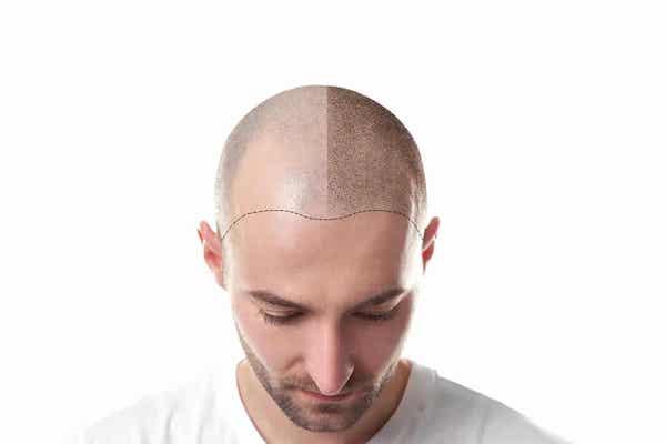 کاشت مو و هر آنچه که باید درباره آن بدانید