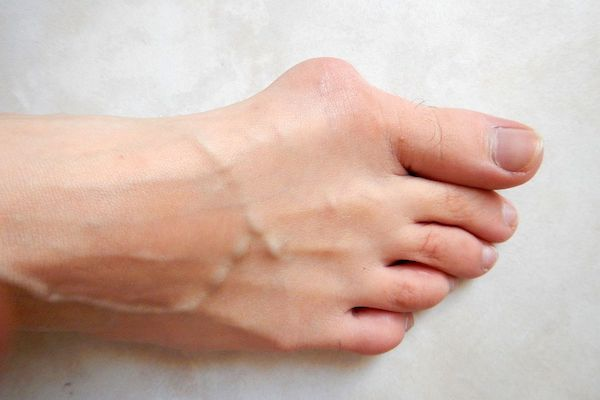 مراقبت از پاها ؛ چگونه سلامت و زیبایی پاهایمان را حفظ کنیم؟