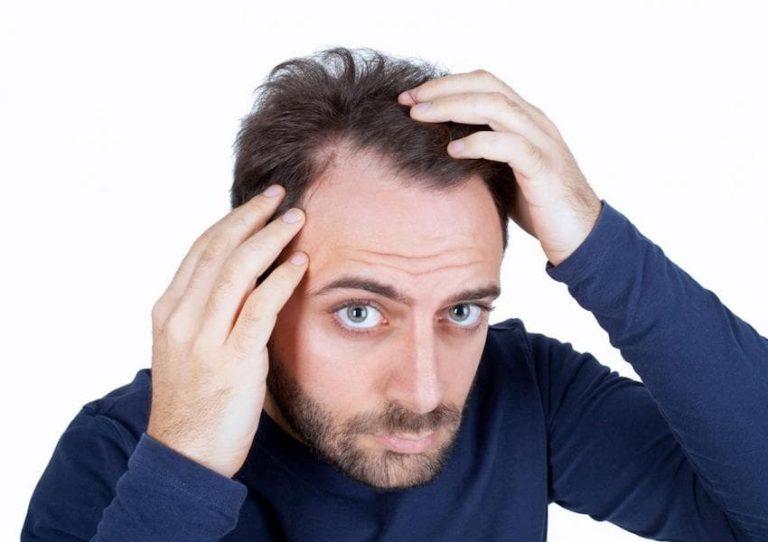 محلول ماینوکسیدیل چیست؟ عوارض، میزان مصرف، موارد مصرف و هشدارها