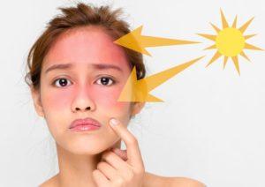 درمان آفتاب سوختگی در خانه با روش های ساده و طبیعی