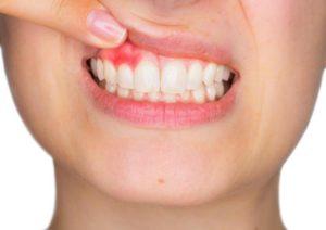 درمان خانگی عفونت دندان یا آبسه دندان با ۱۰ روش واقعا موثر