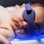 زردی نوزاد؛ علائم، دلایل و روش های درمان