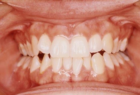 ۱۵ عادت بسیار ساده که دندان های شما را خراب می کنند