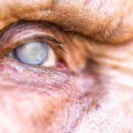 هفت نشانه پنهان که ممکن است آب مروارید چشم داشته باشید
