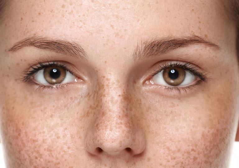 تاثیر بیماری ام اس (MS) بر روی چشم