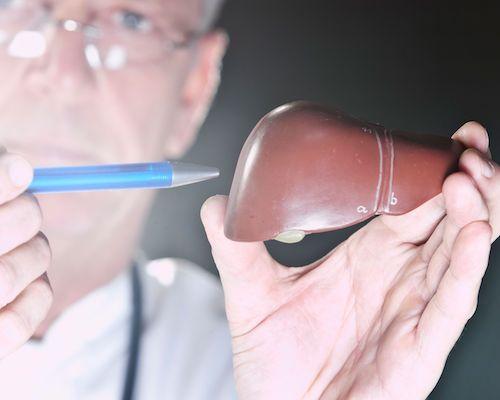 درمان کبد چرب با نکات تغذیه ای و سبک زندگی و ۶ روش خانگی موثر