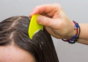 شش درمان شپش سر در خانه که واقعا کار می کنند