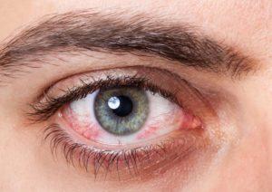 روش های درمان حساسیت چشم و پیشگیری از آن