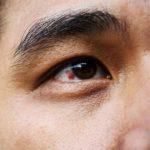 خونریزی چشم چیست و چه نکاتی باید درباره آن بدانیم