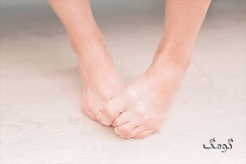 بیماری پای ورزشکار چیست؟ علائم، دلایل، درمان و پیشگیری