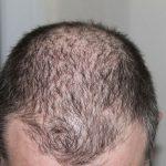 ریزش مو به دلیل کمبود ویتامین D و علائم و درمان آن