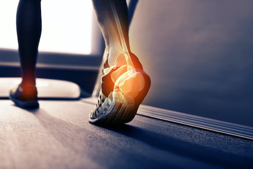 علت اصلی درد پاشنه پا و بهترین روش های درمان خانگی درد پاشنه
