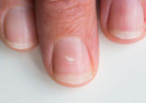 لکه های سفید ناخن؛ از دلایل تا درمان