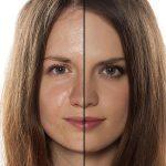 درمان پوست چرب با ساده ترین روش های خانگی