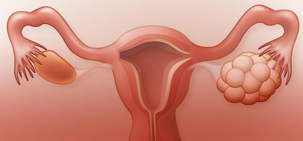 سندرم تخمدان پلی کیستیک دلایل، علائم، تشخیص و درمان