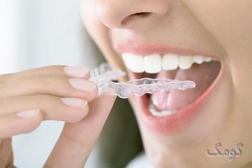 دندان قروچه یا بروکسیسم چیست؟ از علائم تا درمان