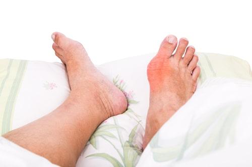 نقرس چیست و چگونه درمان می شود؟