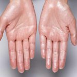تعریق بیش از حد و غیر طبیعی یا هایپرهیدروزیس؛ علائم، دلایل و درمان