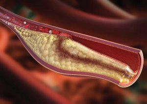 چربی خون بالا؛ علائم، دلایل، خطرات و درمان