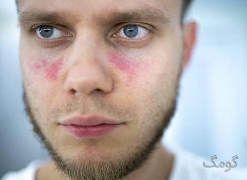 بیماری لوپوس چیست؟ انواع، دلایل، علایم و درمان بیماری لوپوس