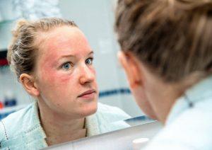 بیماری لوپوس؛ انواع، دلایل، علائم و درمان