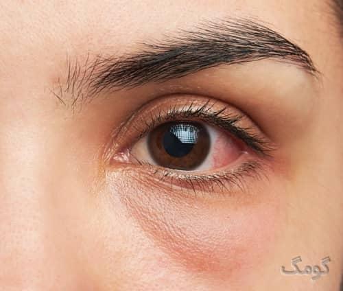 پماد چشمی | انواع پماد چشمی و موارد مصرف و نحوه استفاده