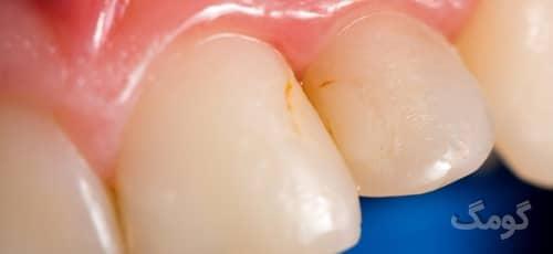 ۱۲ کاری که باعث لکه دار شدن دندان ها می شوند