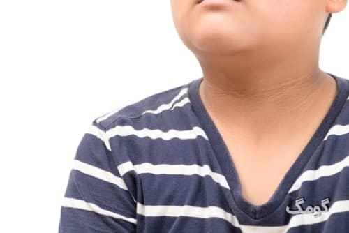 علائم اولیه دیابت نوع ۲ چه هستند؟