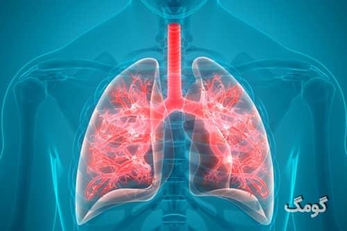 پاکسازی ریه - بهترین روش های طبیعی برای پاکسازی ریه ها