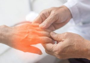 سندروم گیلن باره چیست؟ علائم، علل، تشخیص و درمان