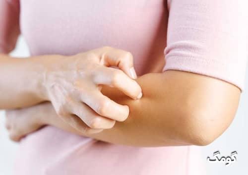 درمان حساسیت پوستی با پمادها و روش های طبیعی