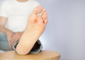 زخم پای دیابتی چیست؟ علائم، دلایل، تشخیص و درمان