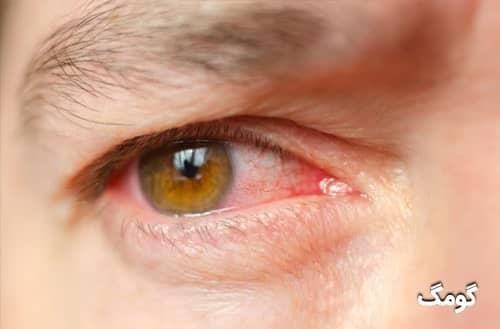 عفونت چشم چیست؟ علل، علائم، درمان خانگی و خطرات