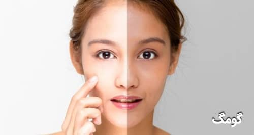 نحوه روشن و درخشان کردن پوست صورت