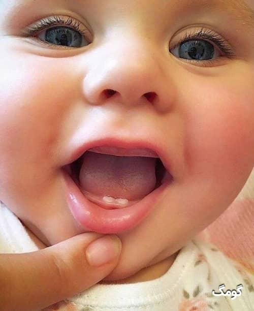 دندان در آوردن کودک چه نشانه هایی دارد؟