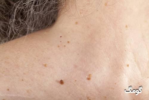 منگوله پوستی روی گردن چیست؟ علائم، دلایل و درمان آن