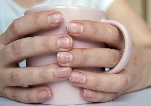 علت لکه های سفید روی ناخن چیست؟